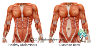 The Tummy Team Diastasis-copyright Graphic
